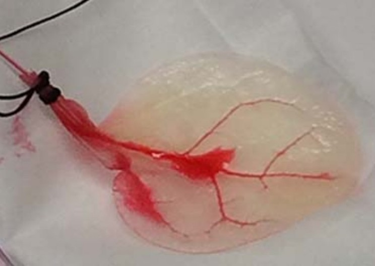 Researchers Grow Human Heart Tissue on Spinach Leaves