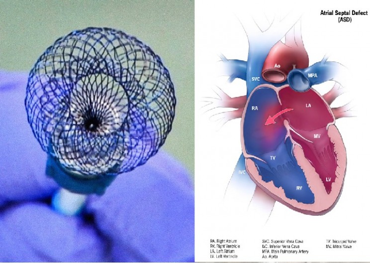 A New Way to Heal Hearts with Non-Invasive Surgery
