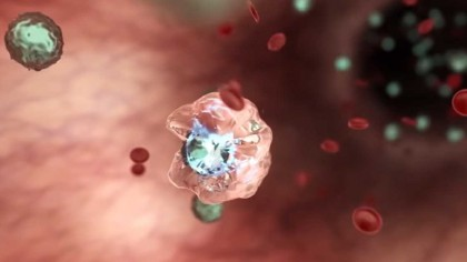First Human Clinical Trial of HIV Drug Gammora Offers Potential Cure