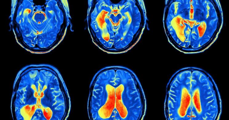 Scorpion Venom Used in Treatment against Aggressive Brain Cancer Tumor