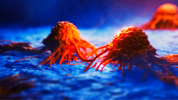 Doctors Say All Cancers Can 'Switch Off' to Evade Treatment