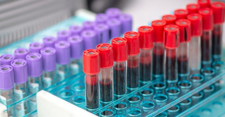 Researchers say blood test can detect cancer years before symptoms