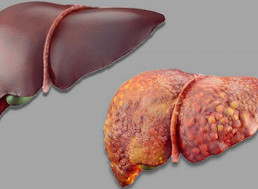 AI Can Detect Language Problems Linked to Liver Failure