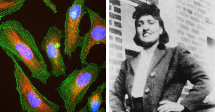 The Immortal Woman: Henrietta Lacks and HeLa Cells