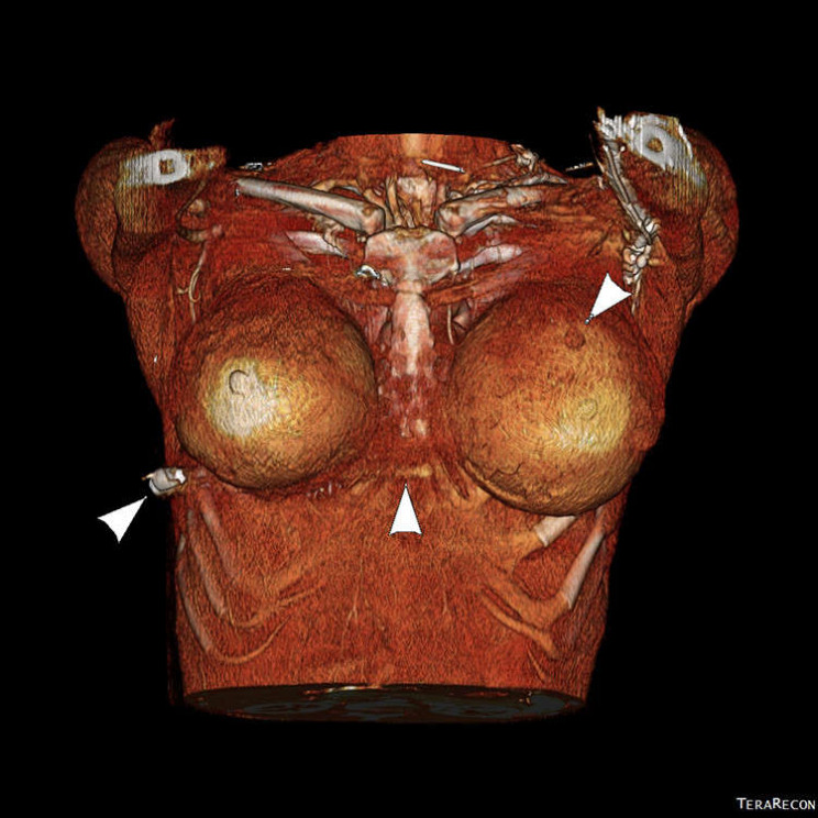 Breast Implants Save Woman's Life by Deflecting Bullet Away From Her Heart