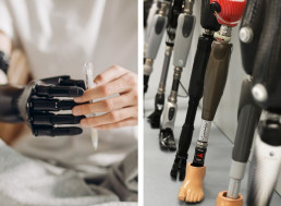 The Basics of Prosthetic Limbs and How They Work