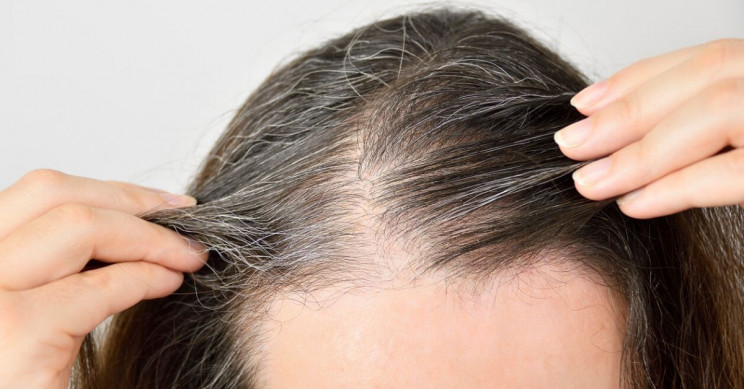 Turns out Stress Really Does Turn Hair Gray, Scientists Confirm
