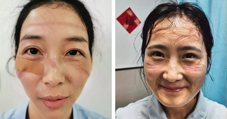 Smiling Faces of Medical Staff in Wuhan After Treating Coronavirus Patients for Hours