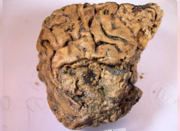 2,600-Year-Old Preserved Brain From UK May Have Finally Revealed Its Secret