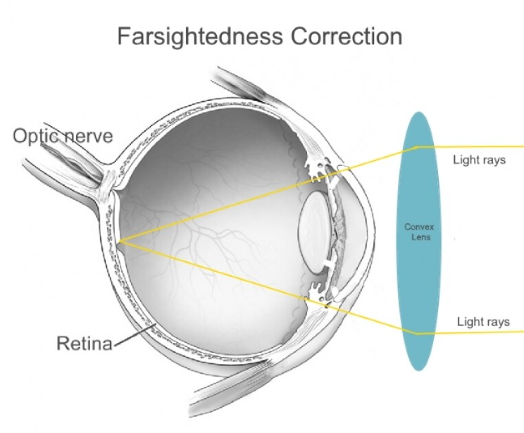 Farsightedness correction