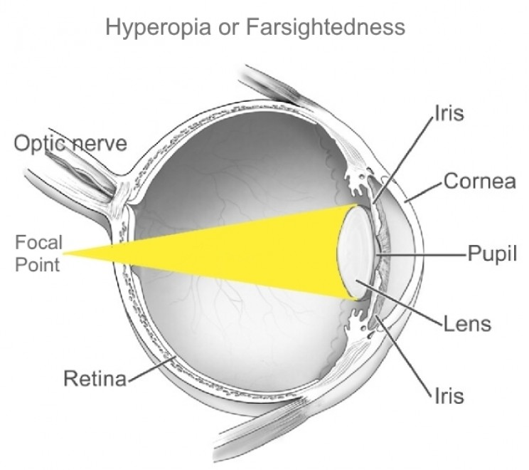 Hyperopia or farsightedness