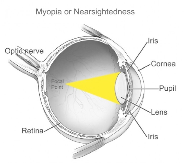 Myopia or nearsightedness