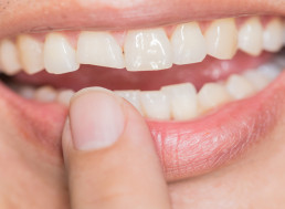 Stem Cells Could Provide New Method of Tooth Repair