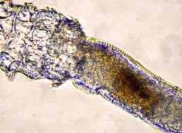 These 'Face Mites' Live in Your Pores and Mate on Your Face