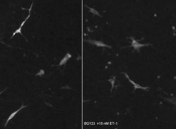 Skin Cells Emit Neuron-Like Bursts Much like Brain Cells, Research Finds