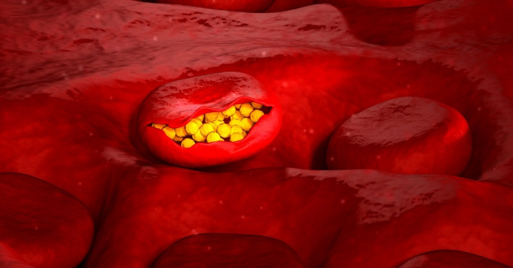 Magnetic Tool That Removes Diseases From the Blood Set For Human Trials
