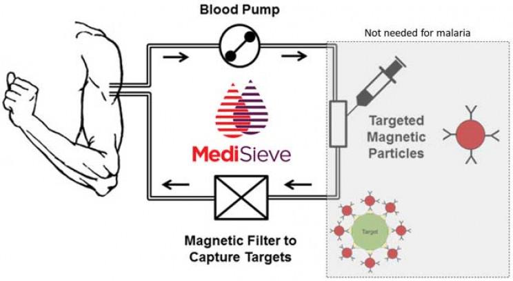 MediSieve system diagram