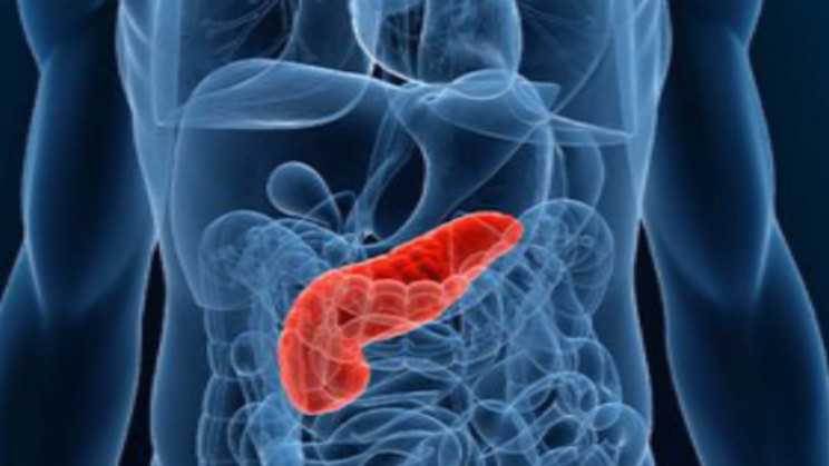 Machine Learning Helps to Drastically Improve Pancreatic Cyst Triage