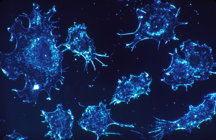 A New 'Trojan Horse' Stealth Drug Is Outsmarting Cancer Cells