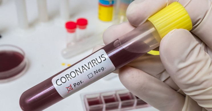 Coronavirus May Live up to 9 Days on Surfaces, New Study Finds