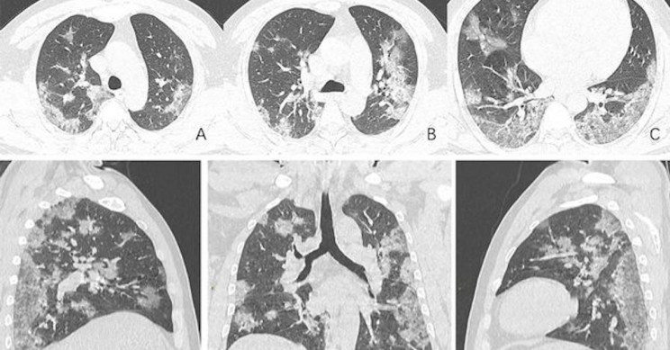 CT-Scans and X-Rays Display the Damage to the Lungs of COVID-19 Patients