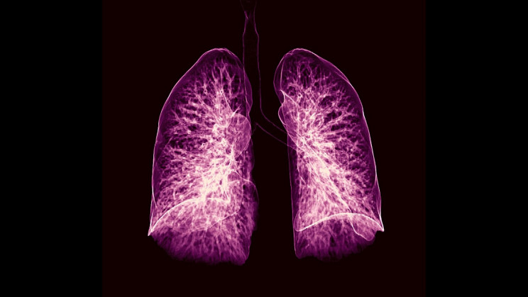 A New Artificial Intelligence Can Help Diagnose Lung Cancer a Year Early