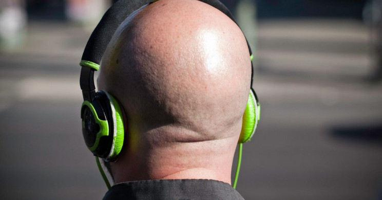 Baldness Cure Possible with Stem Cell Topical Solution