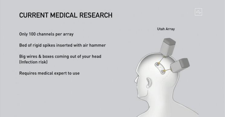 Neuralink Present Medical Research