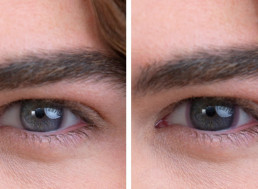 These Contact Lenses Turn Dark in Bright Sunlight