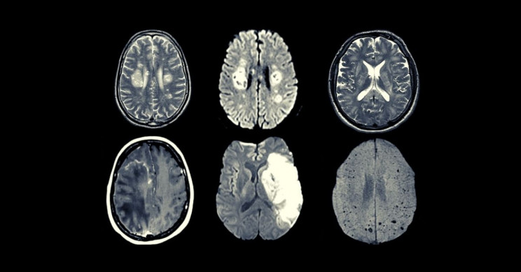 Coronavirus Can Infect, Hijack Brain Cells, Choke Nearby Neurons of Oxygen, Study Says