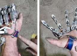 Not Satisfied With Digital Prosthetics, Man Invents Own Mechanical One