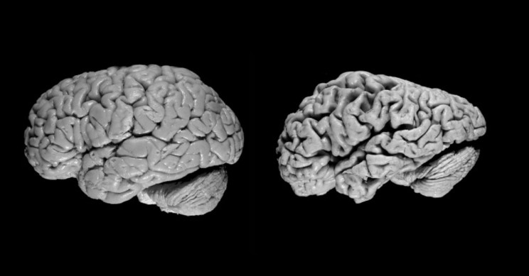 Pre-Clinical Vaccine Targets Nerve Cell Plaques, Slows Down Alzheimer's