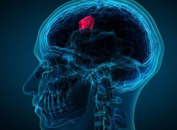 Aggressive Brain Tumor Could Soon Be Diagnosed with a Simple Blood Test
