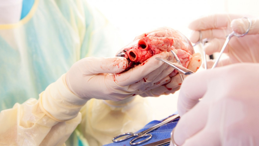 Image result for heart transplant surgery