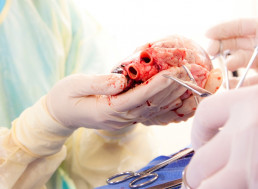 This Extraordinary Heart Transplant Technique Saves Hearts and Lives