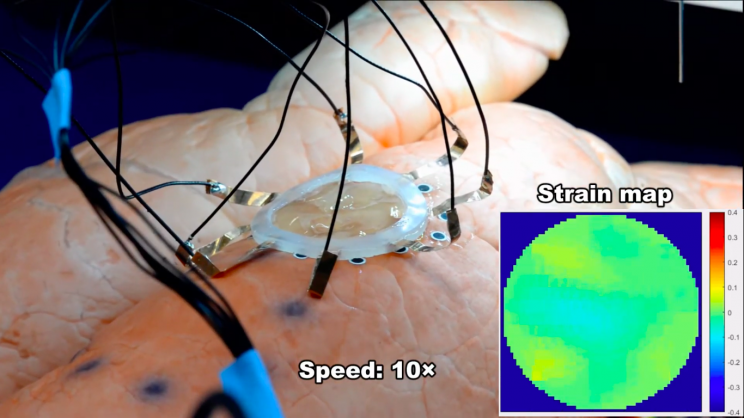 3D Printing Sensors Directly Onto Expanding Organs Is Now Possible