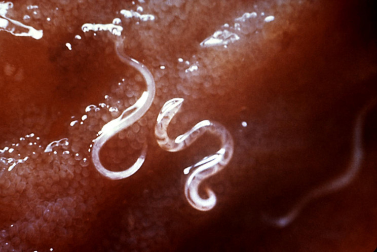 11 Disturbing Parasites That Will Keep You Up at Night
