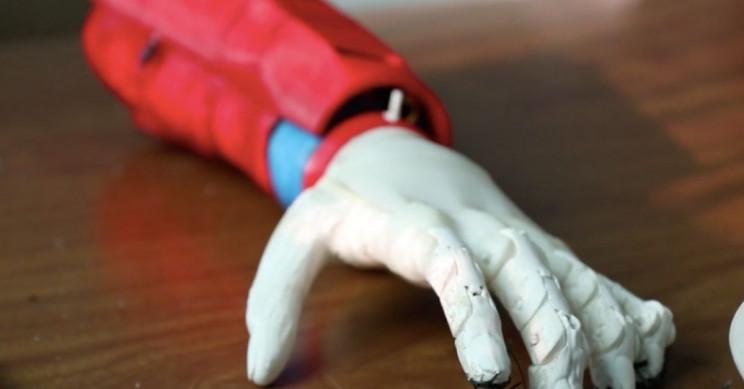 Tunisian Startup 3D Prints Bionic Arms Running on Solar