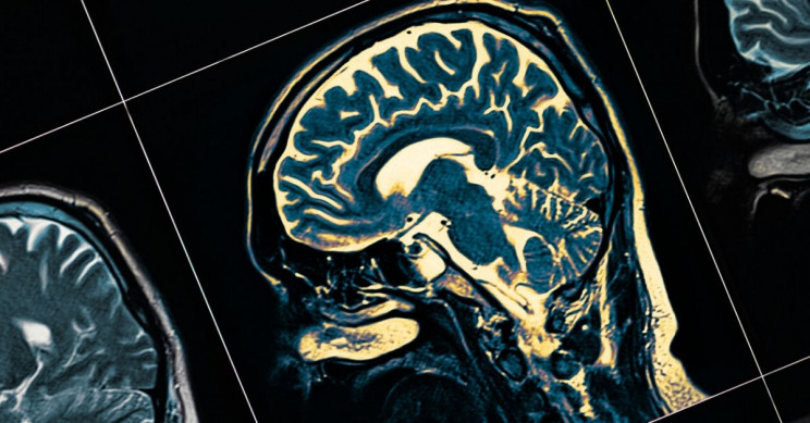 Alzheimer's Could Be Detected Decades in Advance with Biomarker
