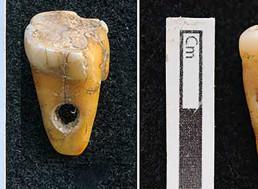 Prehistoric Humans In Turkey Used Human Teeth As Jewelry