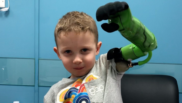 UK Boy First to Receive a Prosthetic Arm Above the Elbow