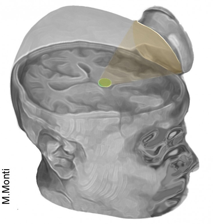 Scientists Use Ultrasound to Jumpstart Two Comatose Patients' Brains