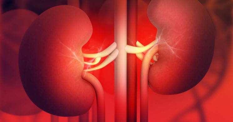 Breakthrough Kidney Stone Test Yields Results in 30 Short Minutes