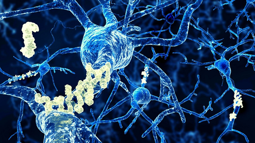 Light removes Alzheimer's disease in mice like the cerebral aqueduct