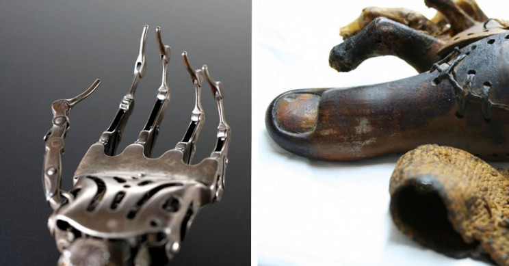 11 of the Most impressive Prosthetics in History