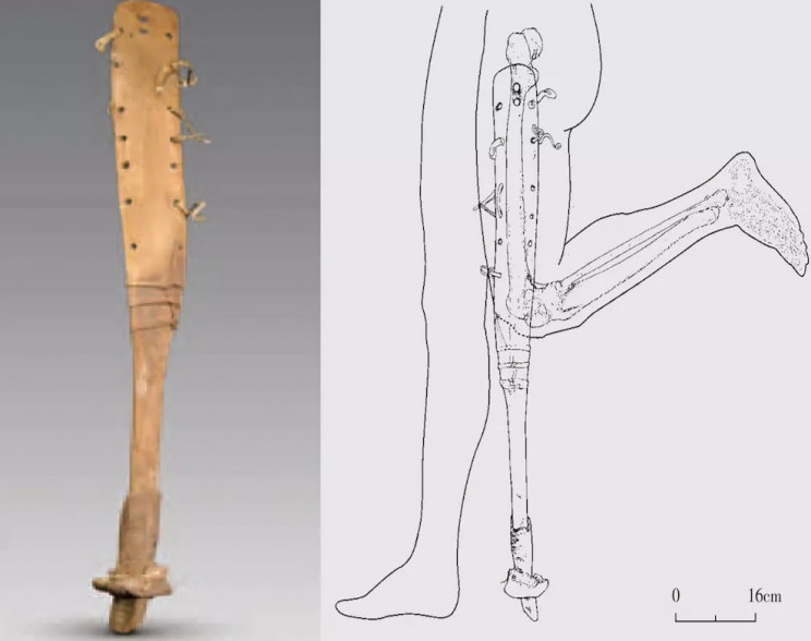 prosthetics in history china