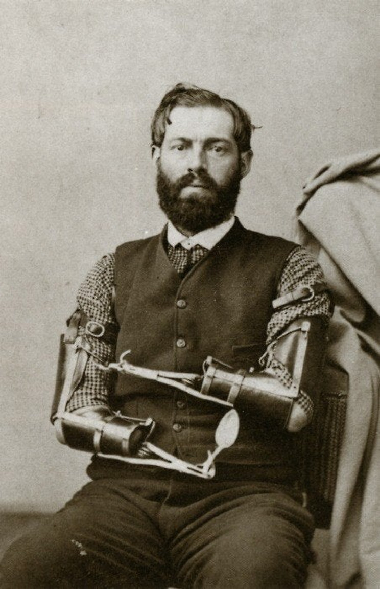 prosthetics in history decker