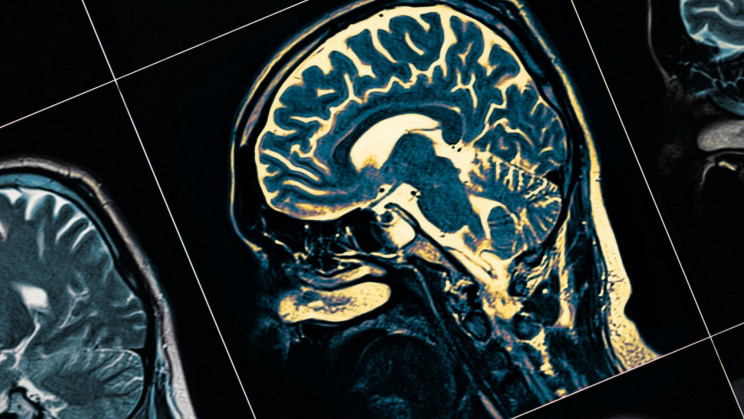 New Alzheimer's Vaccine Shows Promising Results During Clinical Trials