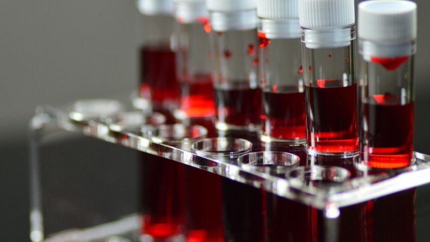Your Blood Type May Determine Whether You Get COVID-19 or Not