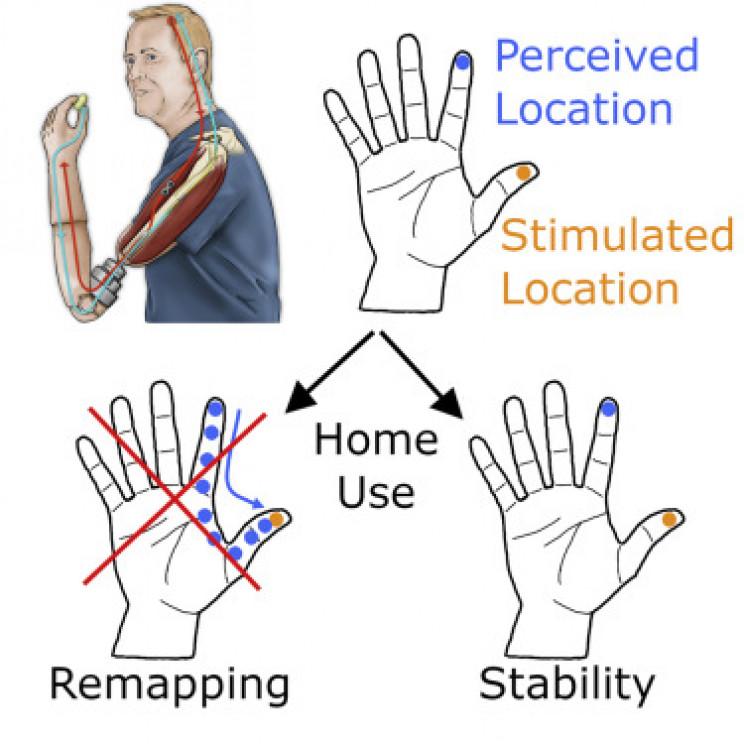 brain prosthetic adaptation